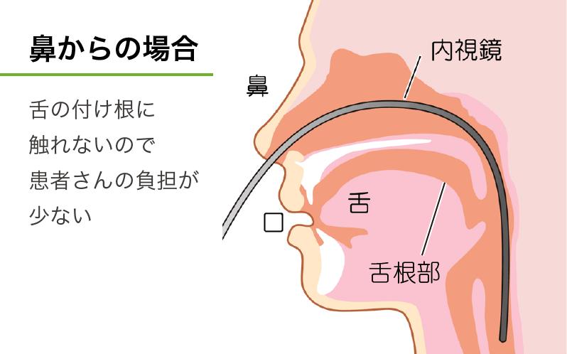 鼻から挿入する経鼻内視鏡検査